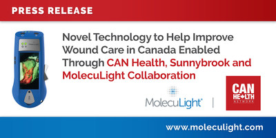 Novel Technology to Help Improve Wound Care in Canada Enabled Through CAN Health, Sunnybrook and MolecuLight Collaboration